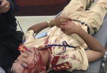 Photo of Đại uý CSGT bị người vi phạm dùng gạch tấn công nhập viện