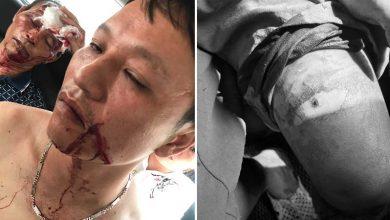 Photo of NÓNG: Côn đồ xông vào nhà nổ súng truy sát một gia đình, khiến 3 người nhập viện